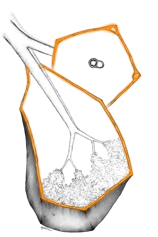 Septal pattern : illustration
