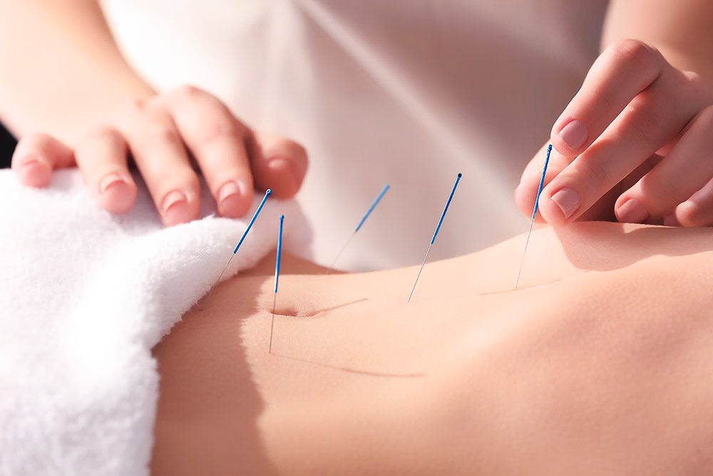_Medical_Acupuncture.jpg