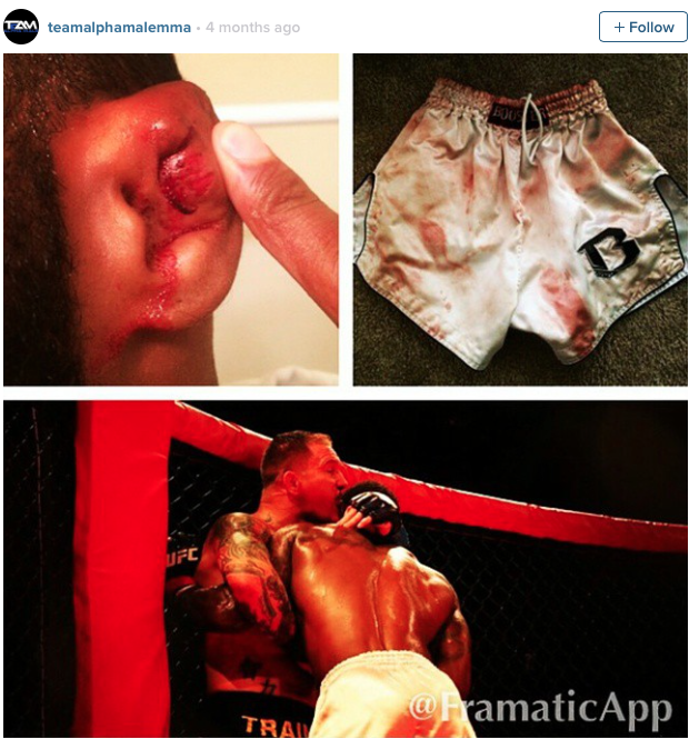 """DJ """"Black Mamba"""" Roberson is bitten by his opponent Frank Lester in October 2014 at the Jacksonville Rancheria."""