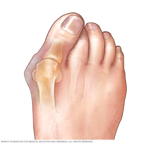 You see an obvious bone that is hard protruding on the side of your foot.