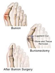 bunion surgery.jpg