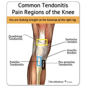 tendonitis.png
