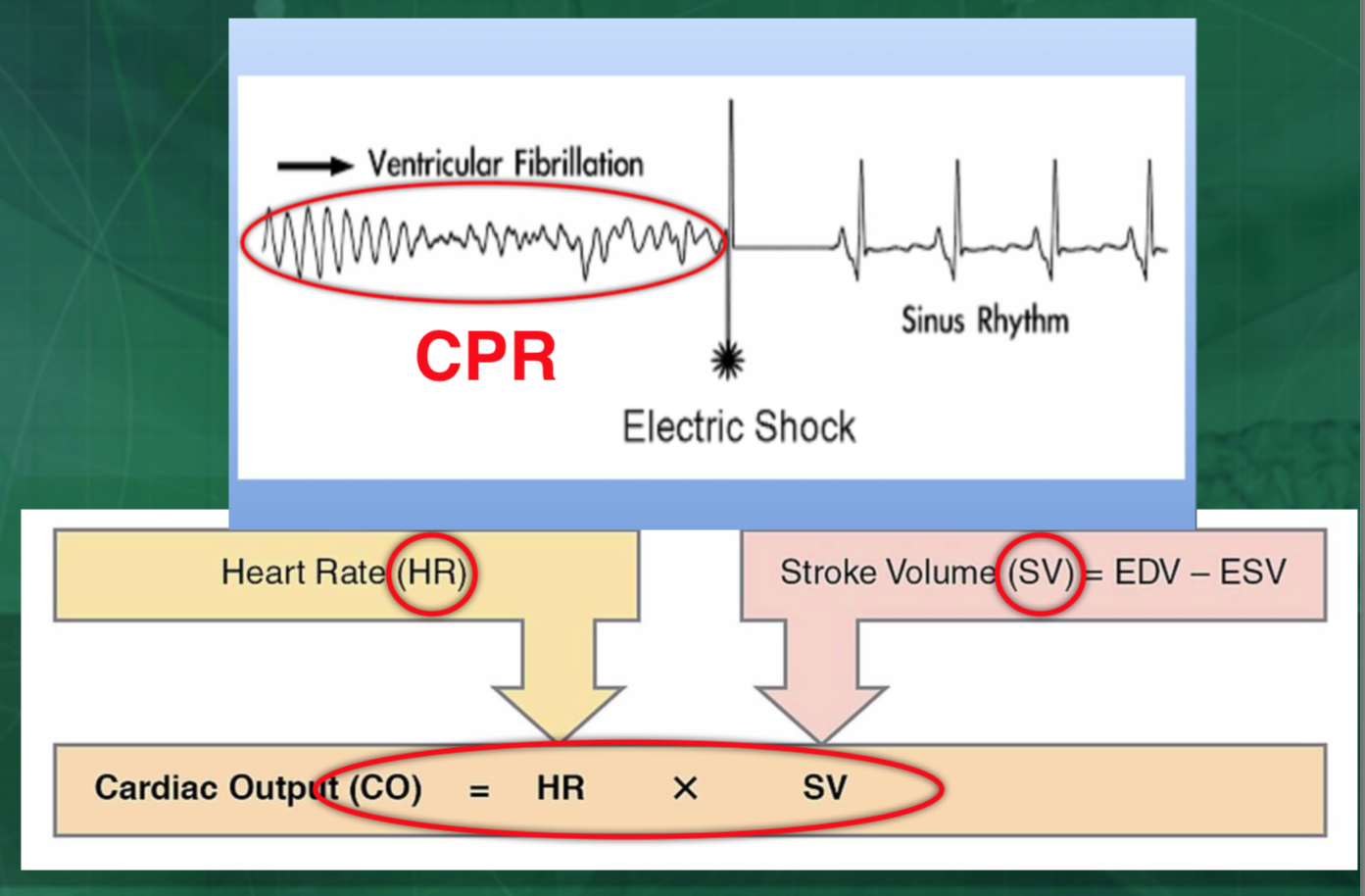 …………………………………………… CO ( during CPR) = HR (compression rate) X SV (depth of compression) ……………………………………………