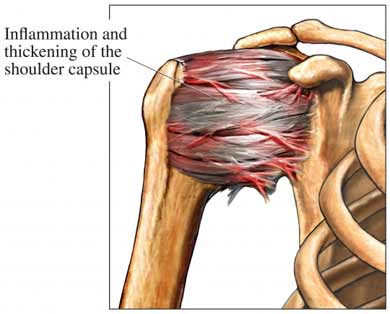Frozen shoulder can be described as a significant reduction in range of motion of the glenohumeral (ball and socket) joint of the shoulder complex, initially caused by inflammation.  As a result of this inflammation, the capsular ligaments that hold this joint together become stiff and develop adhesions which reduce the joint's active and passive range of motion.  Along with the tightness/stiffness there is pain at end range of motion.