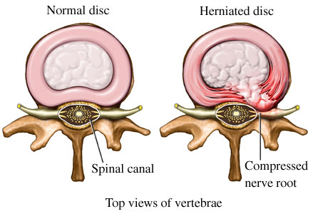 Disc bulge impinging upon spinal nerve root.