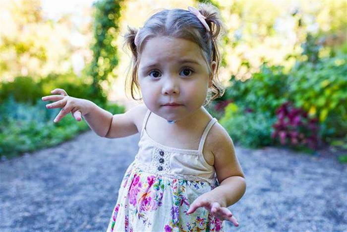 Courtesy Camille Walker  Despite undergoing more than a dozen surgeries to treat her omphalocele, Amber Boyd enjoys playing, reading, and dancing like any toddler.