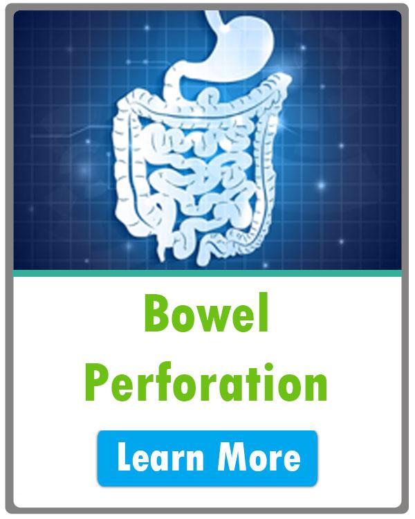 bowel perforation