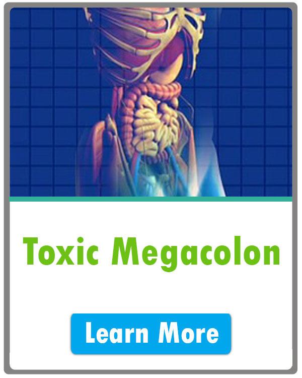 toxic megacolon