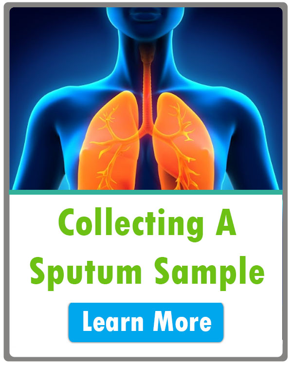 How to Collect a Sputum Sample