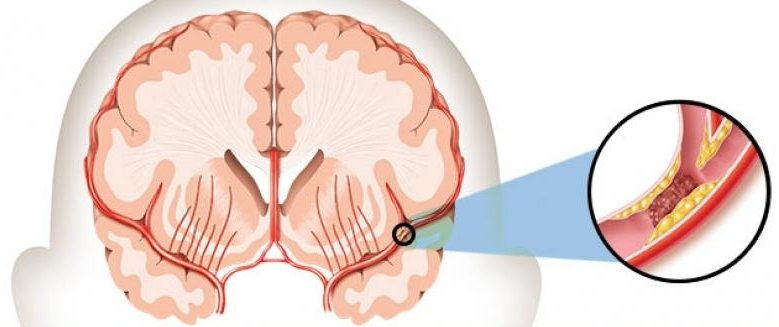 Illustration of an ischemic stroke.