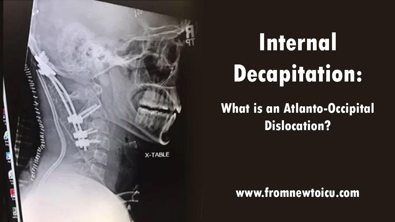 Internal Decapitation Atlanto Occipital Dislocation.jpg