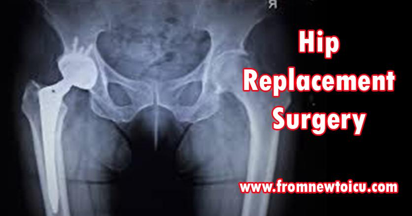 Hip Replacement Surgery.jpg