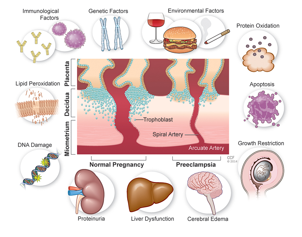 """In collaboration with the Dept. of Medical Art at Cleveland Clinic.   Published:  Eva Tvrda, M.S. and Ashok Agarwal,Ph.D. Springer Science+Business Media """"Male and Female Fertility: Food, Lifestyle, Dietary Supplement"""",manuscript; """"Oxidative Stress in Pre-Eclampsia"""""""