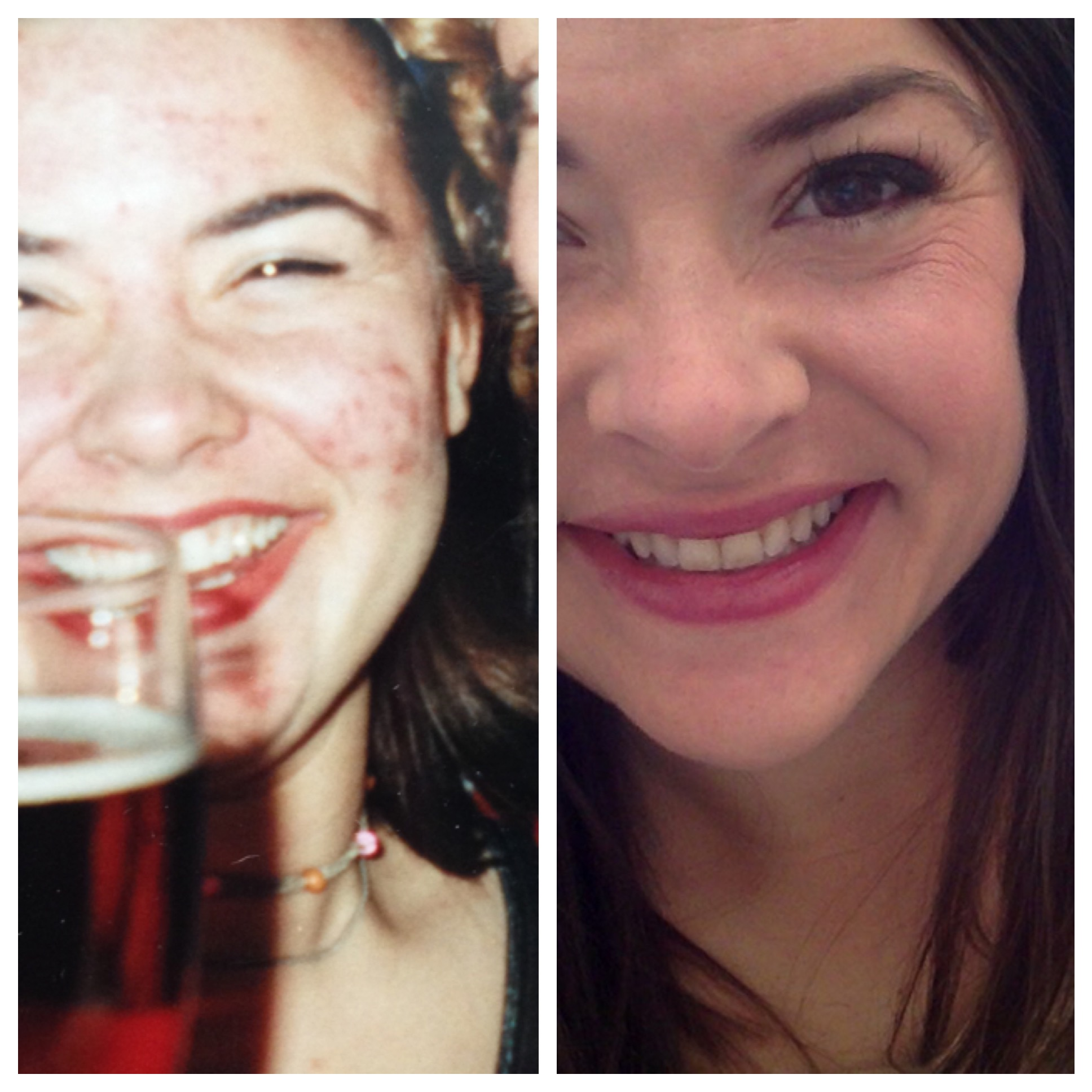On the left is my 20th birthday, on the right is now (I am 35 but you can just call me 29).