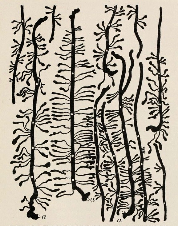 """Work of Black Hills bark beetle on the inner surface of living bark.""  Insects and human welfare.  1920. via:  Nemfrog"