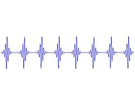 Figure 20: Acceleration Time Waveform after High Pass Filter