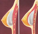 breast_augmentation-3.jpg