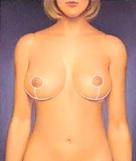 breast_augmentation-4.jpg
