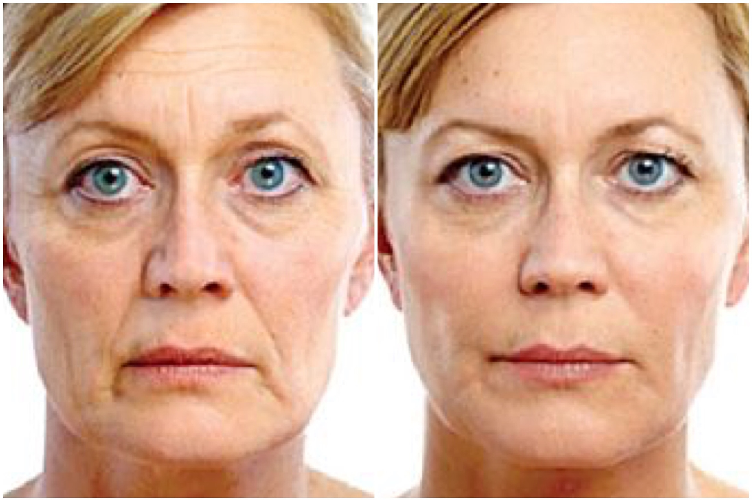 Exilis Skin Tightening Before and After , 3 Treatments