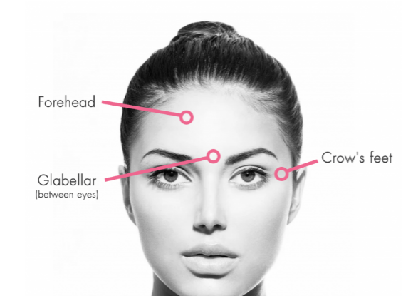 thumbnail_House of Vain sites for botox.png