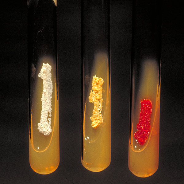 Slant cultures demonstrating variations in colony appearance between aerobic Actinobacteria . CDC/Dr. David Berd (PHIL #3078), 1972.