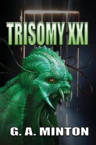 TrisomyXXI.jpg