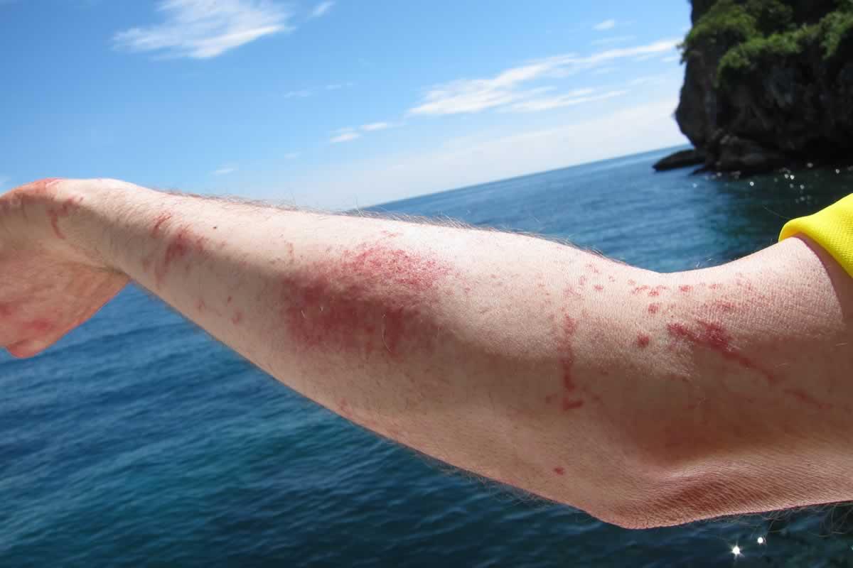 Marine Bites