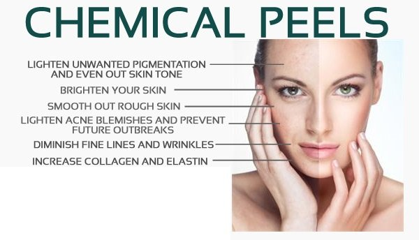 $59 Chemical Peels - Chemical peel will be selected based on your skin type.