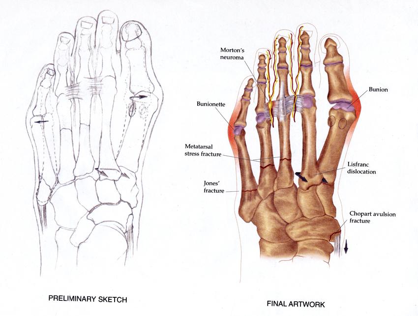 Foot Fractures (Sketch & Final Art)