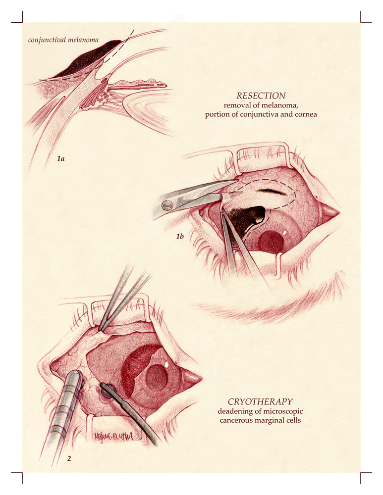 Melanoma Resection in the Eye