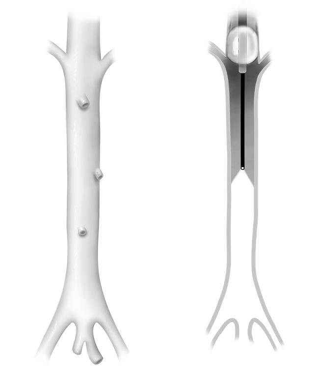 Balloon Catheter and Probe in Rabbit Aorta