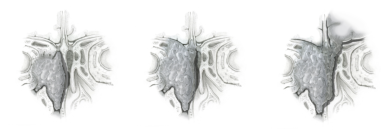 Esthesioneuroblastoma Staging