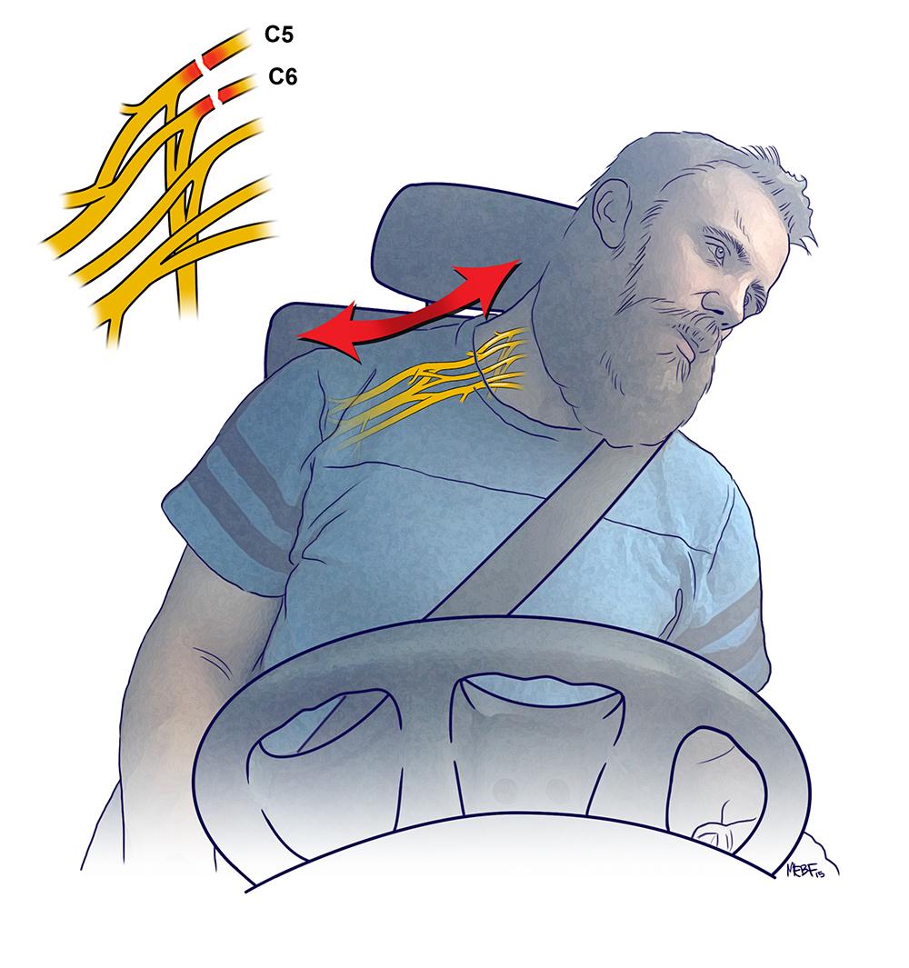 brachial_seatbelt_injury(final).jpg