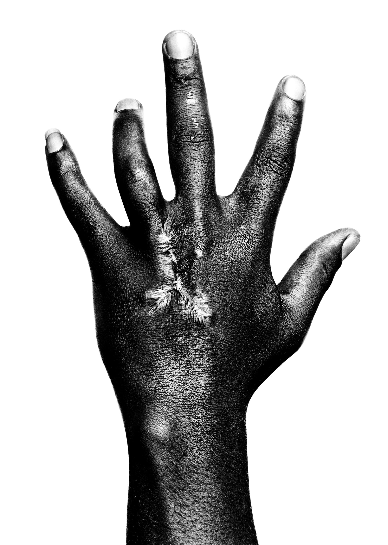 Hand of Bakame Nzinga Kambuya, 39