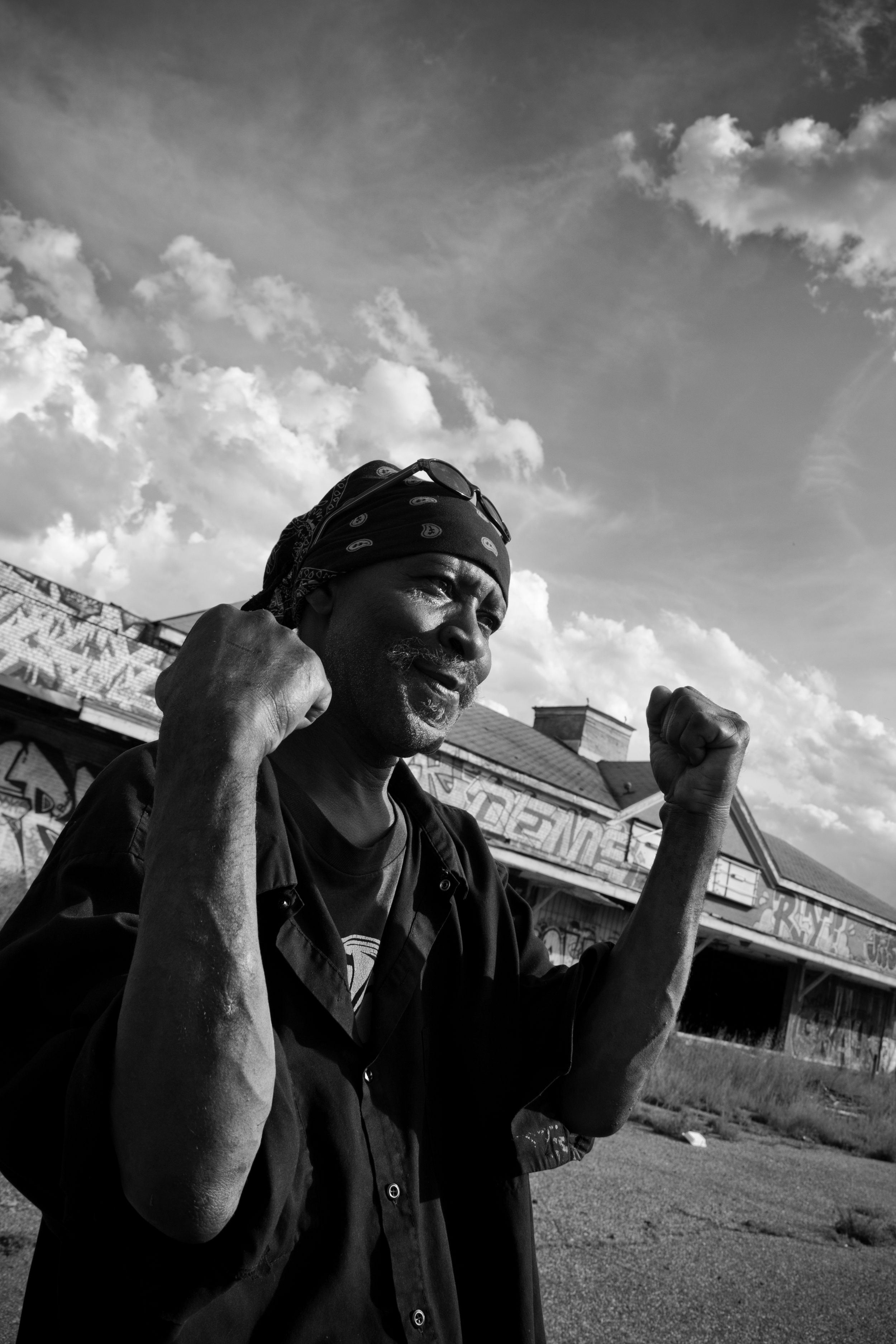 "Local Ronny ""Packard"" poses for a photo and shows scars from gunshots he claims he received after a confrontation with a man scrapping for metal at the Packard Plant. Ronny is one of many who feel metal scrappers destroy property and cause problems for the city. Packard Plant, Detroit."