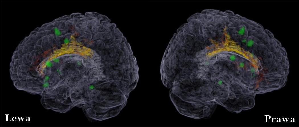 Dwujęzyczność wpływa na funkcjonowanie i strukturę mózgu. Zielony kolor na zdjeciach obu półkul mózgowych wskazuje na region istoty szarej w mózgu, który wykazuje zwiększoną aktywację, gdy dwujęzyczna osoba przełącza się pomiędzy językami. Żółty kolor wskazuje regiony większej gęstości istoty białej u osób dwujęzycznych w porównaniu z jednojęzycznymi. Dane uzyskane w badaniach dowodzą, że efekty dwujęzyczności przekładają się na zmiany w funkcjonowaniu i strukturze przednich płatów mózgu, odpowiedzialnych za tzw. wyższe funkcje poznawcze.  Żródło:Bialystok E, Craik FIM, Luk G. (2012): Bilingualism: Consequences for Mind and Brain.Trends in Cognitive Sciences. 16(4): 240-250.