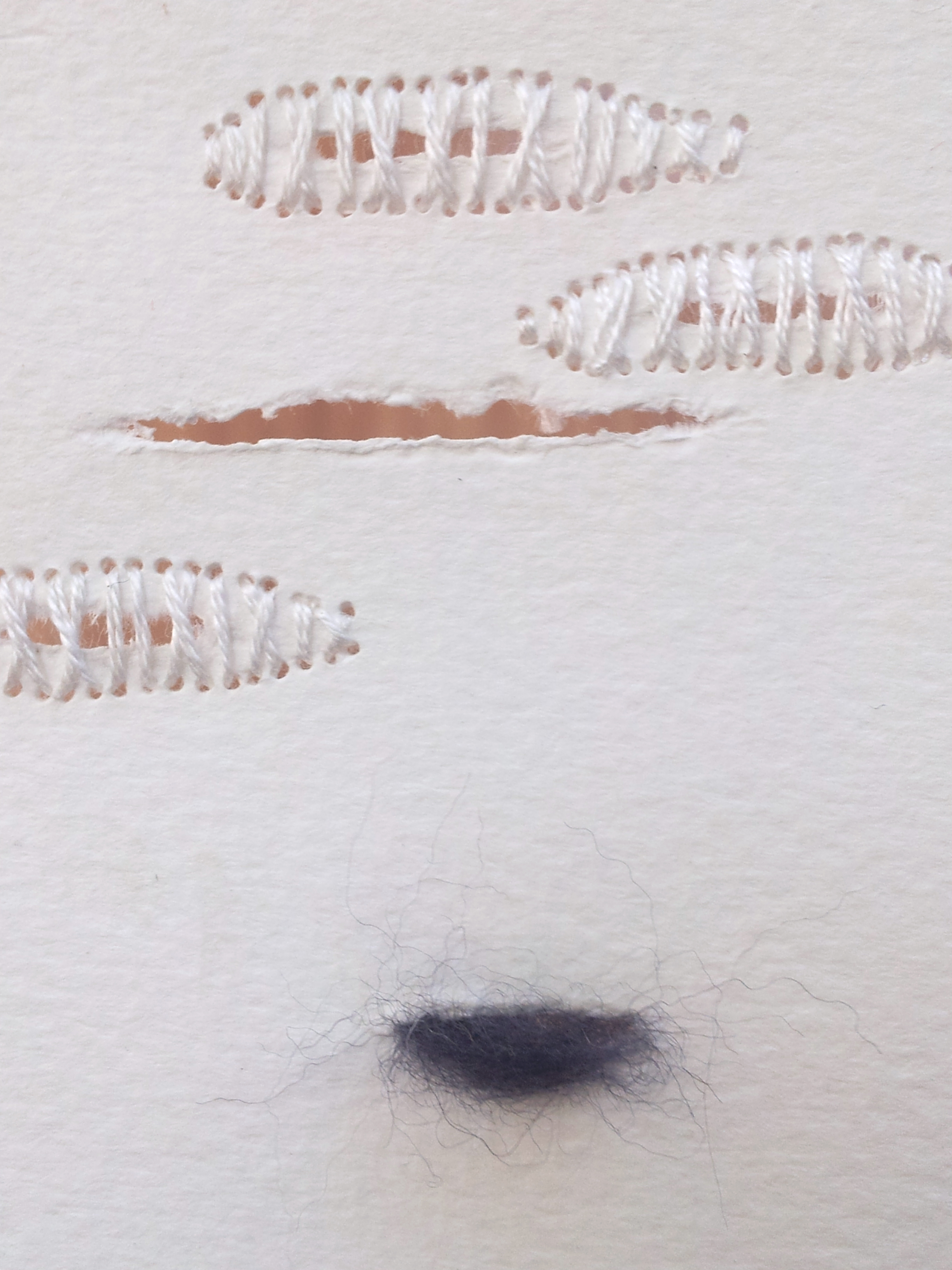 Beauty Mark  , No. 4 - detail