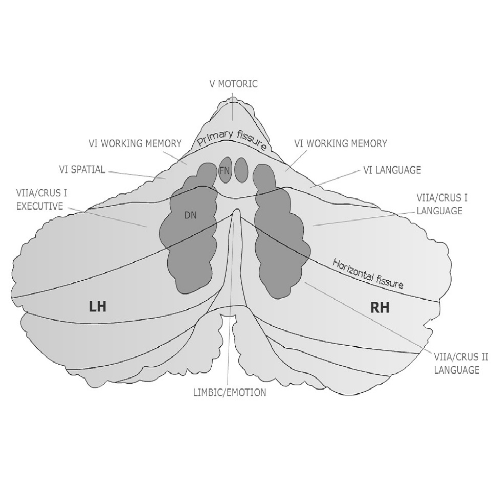 Topography of the cerebellum (simplified). Designed by Dr. Thora Gudrunardottir 2010. © Copyright by Child's Nervous System (Springer)