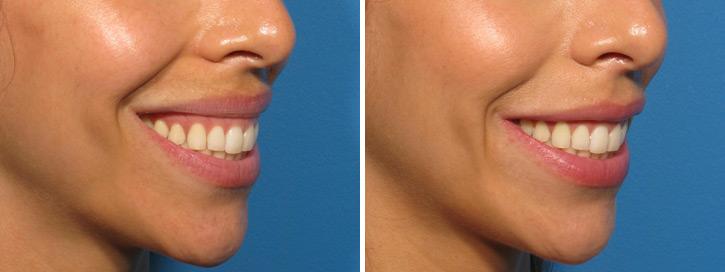 botox-smile-2.jpg
