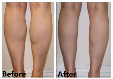 calf-botox-before-after-0731081214.jpg