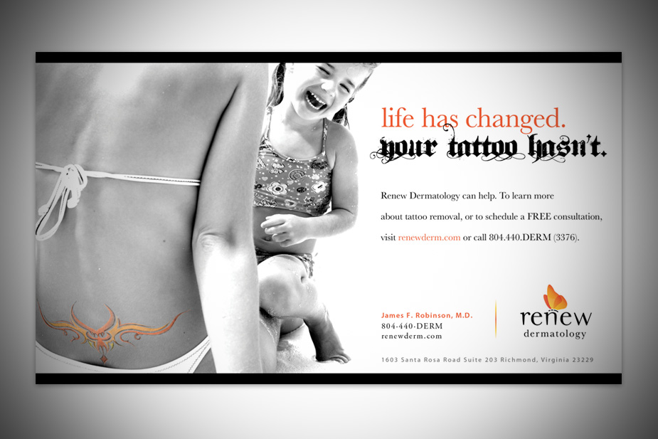 Renew Tattoo Removal Print Ad