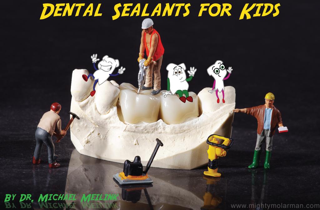 Dental Sealants for Kids - Dr. Michael Meilink