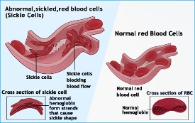 Visual of sickle shaped red blood cells.