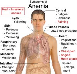 anemia__symptoms.png