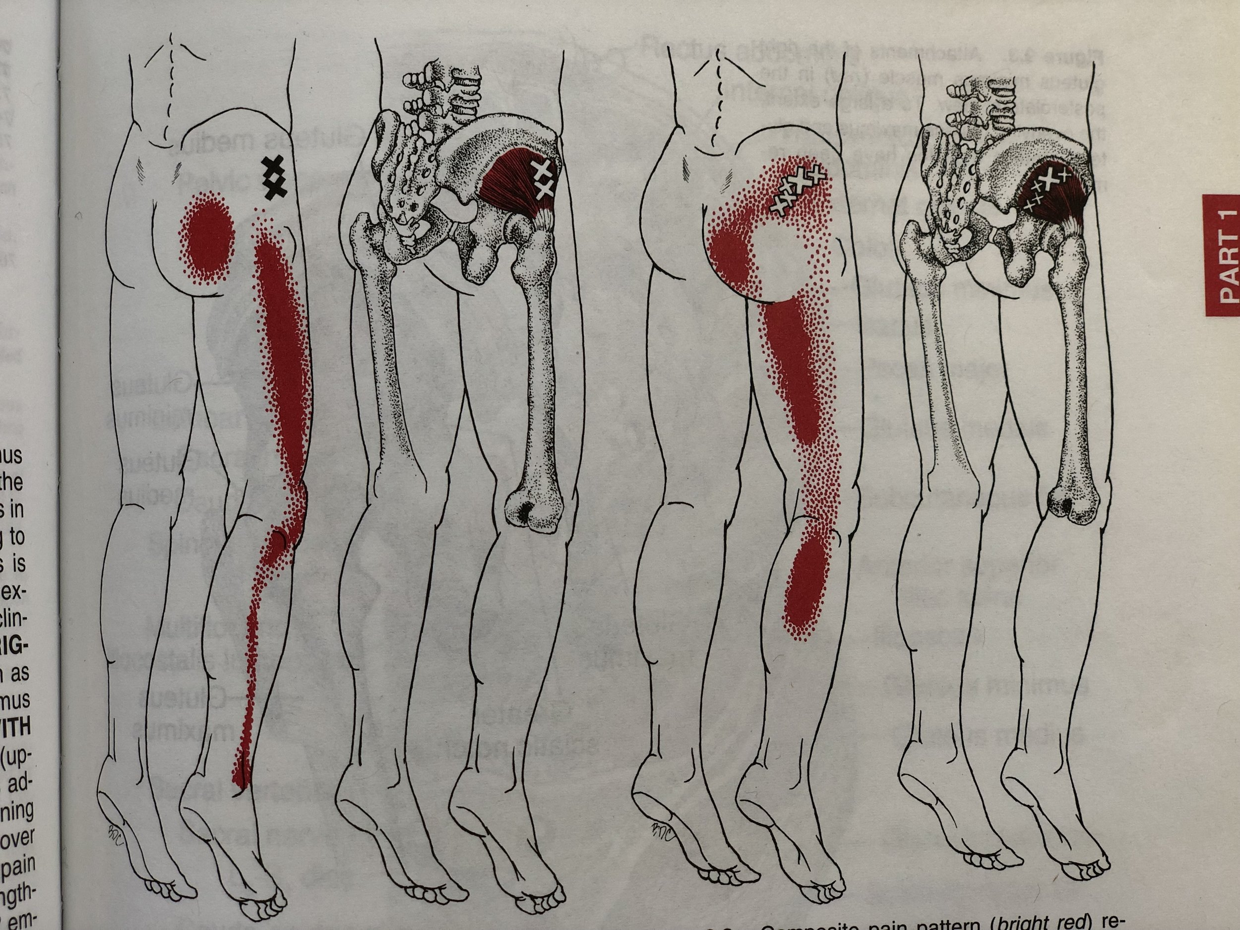 Glute Minimus Trigger Point referral pain pattern - Travell & Simons Myofascial Pain and Dysfunction