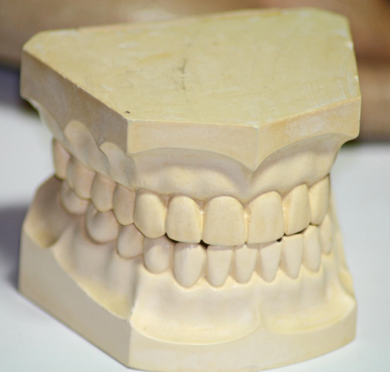 Proper Dental Impression should look like this... Stone, trimmed, upper and lower and bubble free.