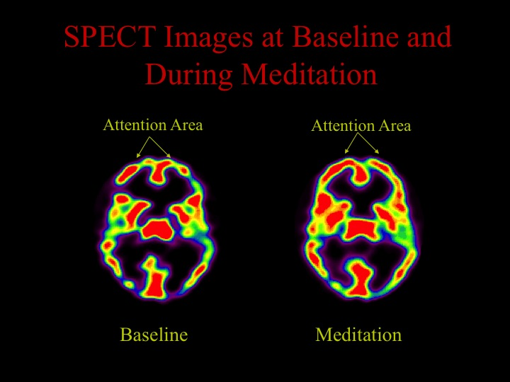 The front part of the brain, which is usually involved in focusing attention and concentration, is more active during meditation (increased red activity).  This makes sense since meditation requires a high degree of concentration. We also found that the more activity increased in the frontal lobe, the more activity decreased in the parietal lobe. A more complex version of the model from which the hypothesis is based can be found in my book  Why God Won't Go Away,  written with Eugene d'Aquili.