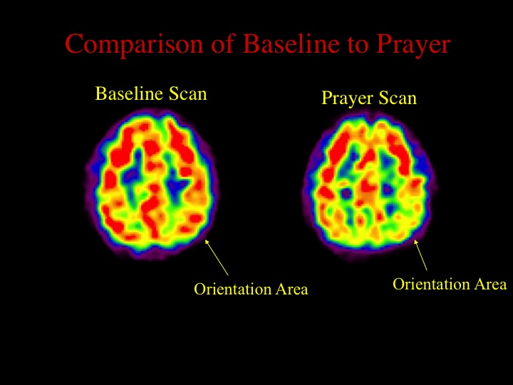 The nuns, like the Buddhists, also showed decreased activity in the orientation area (superior parietal lobes) of the brain. A more thorough description of the results from this study can be found in my book  Why We Believe What We Believe , written with Mark Waldman.