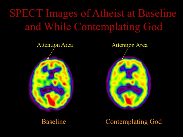 We also looked at the brain of a long-term meditator who was also an atheist. We scanned the person at rest and while meditating on the concept of God. The results showed that there was no significant increase in the frontal lobes as with the other meditation practices. The implication is that the individual was not able to activate the structures usually involved in meditation when he was focusing on a concept that he did not believe in.