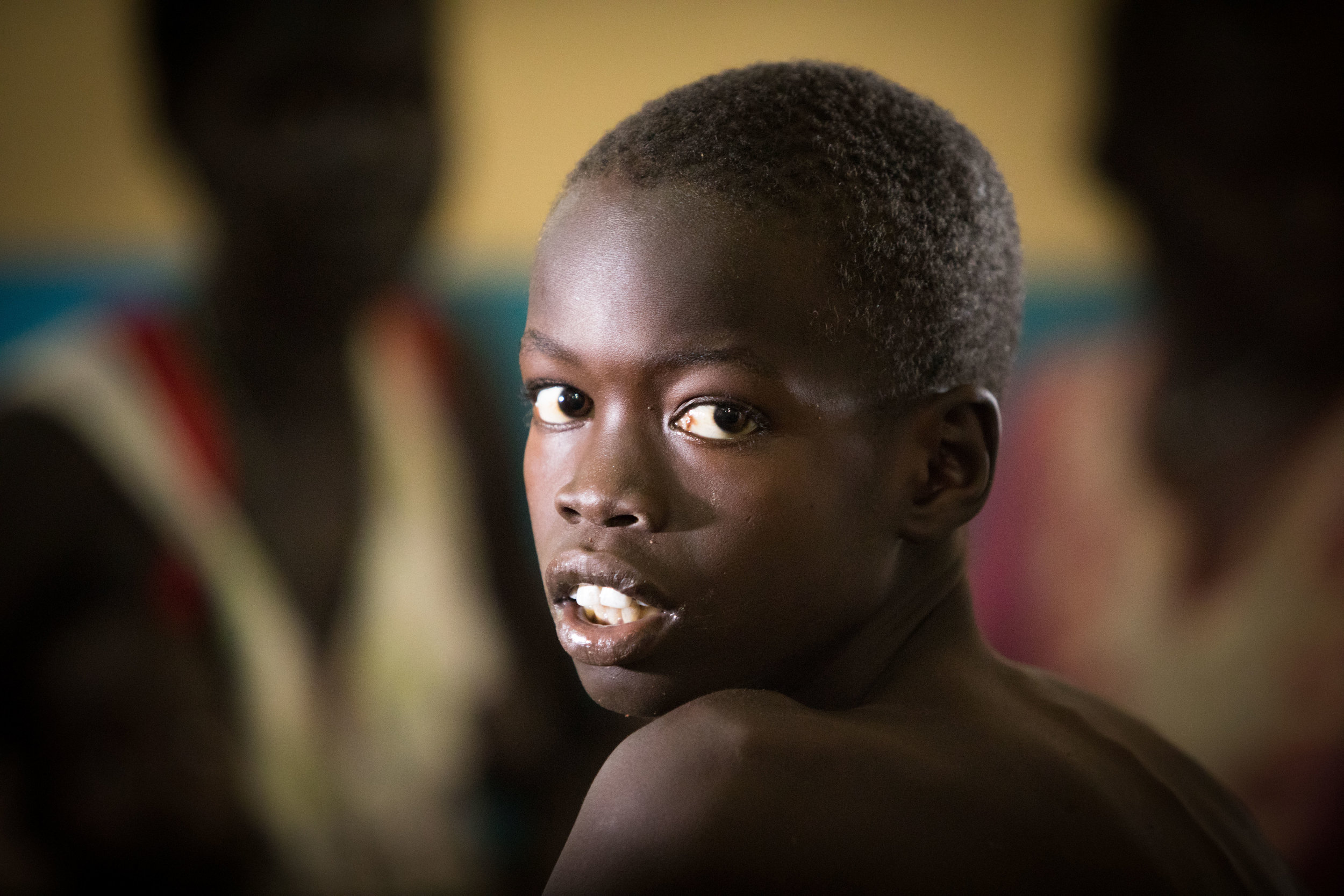 A young boy in the MSF run hospital in Aweil, South Sudan